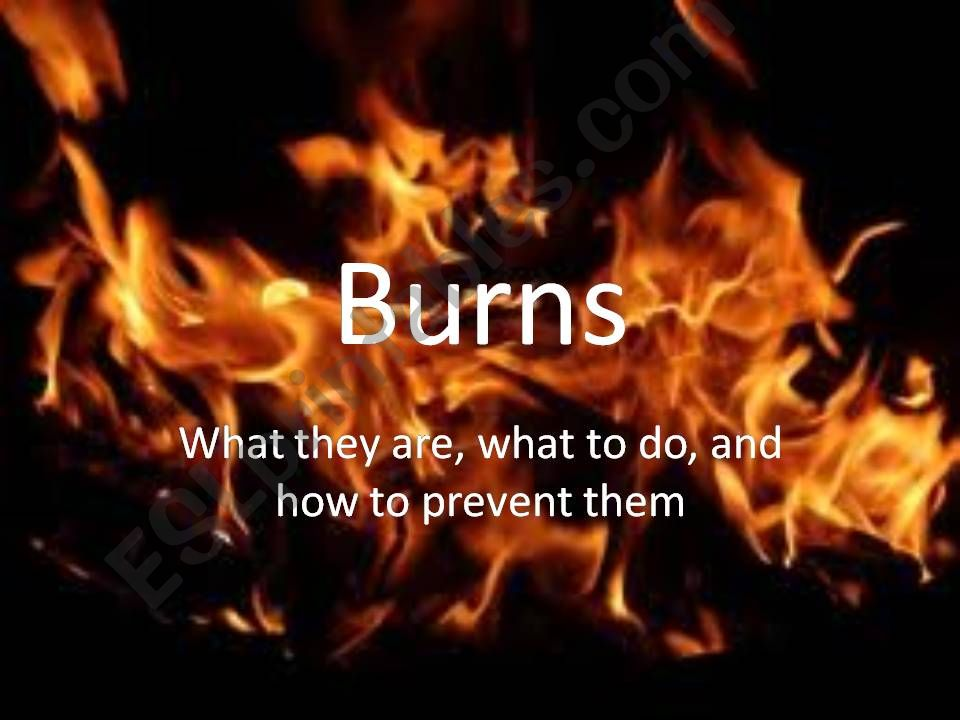 Burns powerpoint